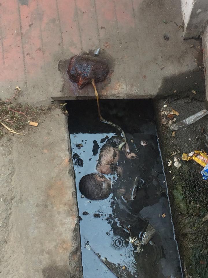 girl fetus udaipur